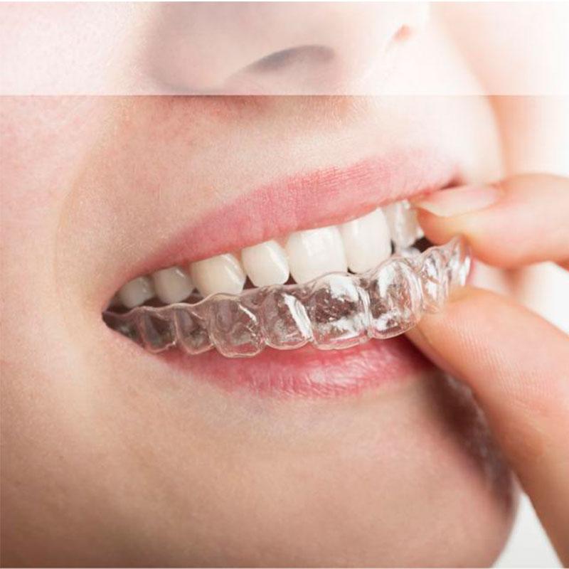 Ortodonzia invisibile: allineatori trasparenti