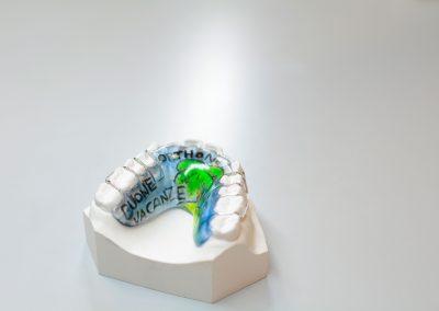 ortodonzia mobile: Placca di howlay