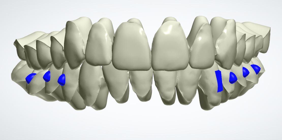 Modello 3d dei denti dopo del trattamento di ortodonzia invisibile