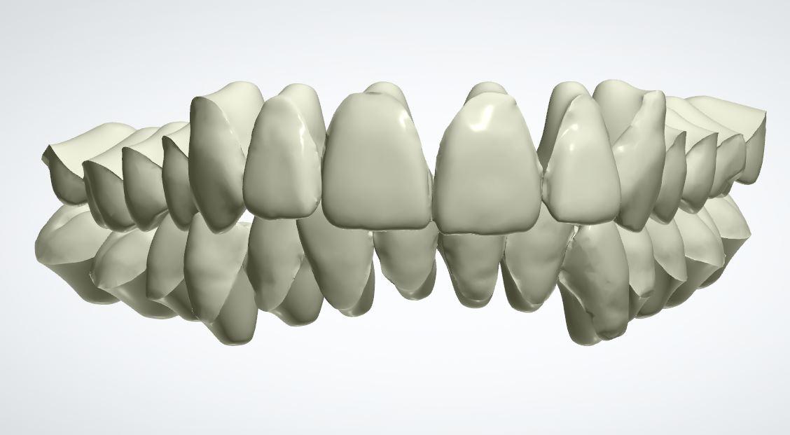 Modello 3d dei denti prima del trattamento