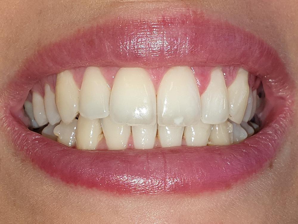 Ortodonzia invisibile: foto frontale dei denti dopo il trattamento