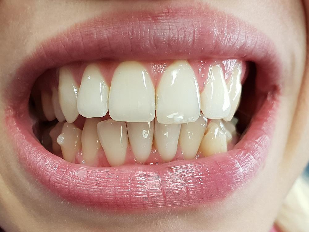 Ortodonzia invisibile: foto frontale dei denti prima del trattamento