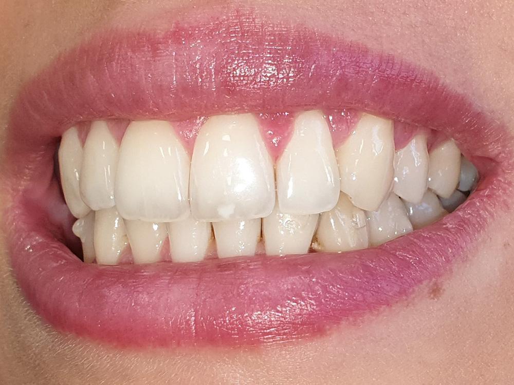 Foto laterale dei denti dopo il trattamento di ortodonzia invisibile