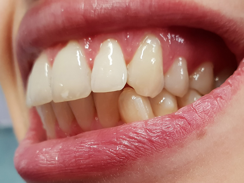Ortodonzia invisibile: foto laterale dei denti prima del trattamento